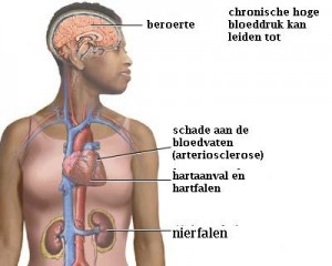 onbehandeldehypertensie