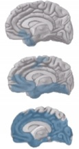 De hersenen worden aangetast door plaques, neurofibrillaire kluwens en atrofie