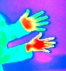 Infraroodbeeld. Bovenste hand is van iemand met Raynaud